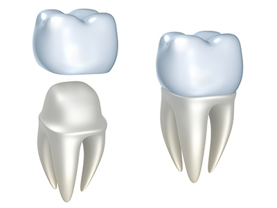 Rendering of dental crowns by Greashaber Dentistry in Ann Arbor, MI.